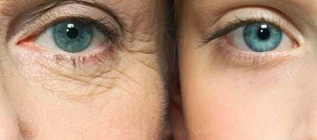 arrugas-ojos