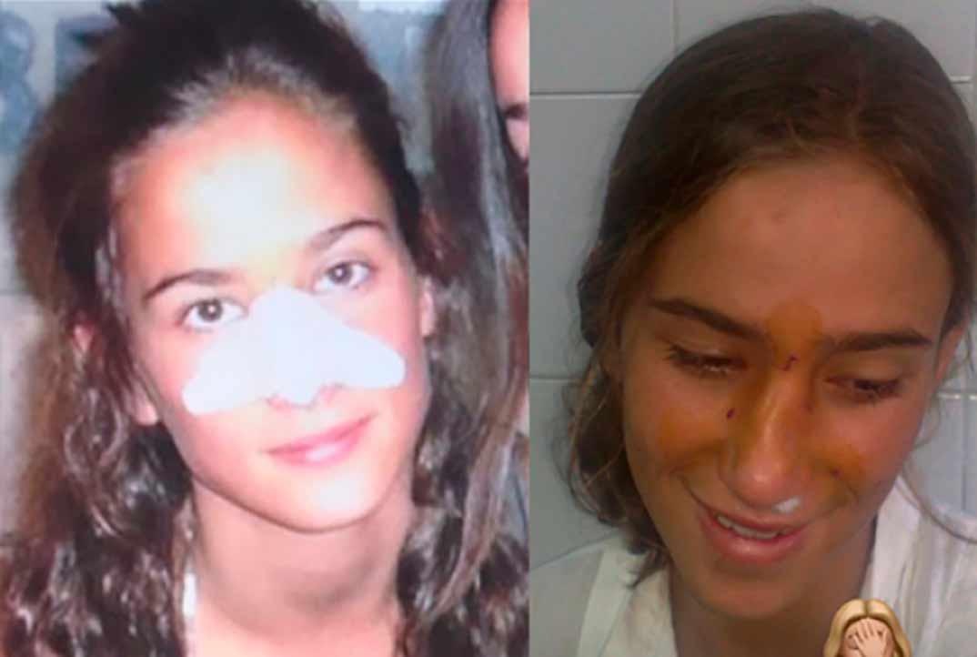 María Pombo a los 9 y a los 13 años © Instagram