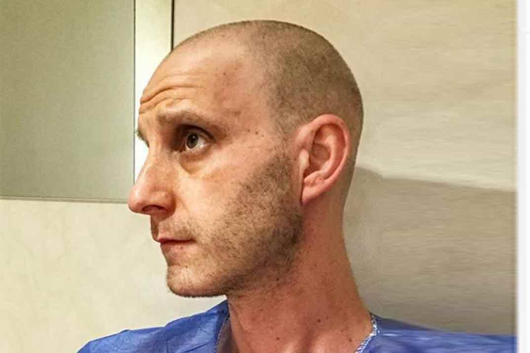 Dani Rovira no pierde el humor al mostrar la realidad de una sesión de radioterapia