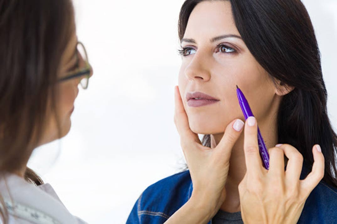 ¿Qué es la blefaroplastia y para qué sirve?